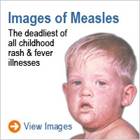 Images of Measles: The deadliest of all childhood rash and fever illnesses