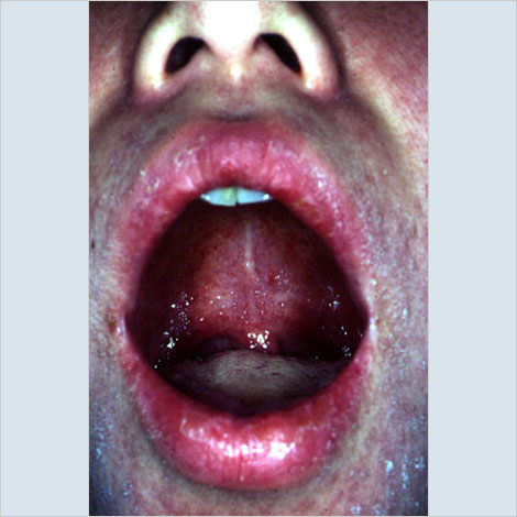 dark spot on cheek in mouth - Top Doctor Insights on HealthTap