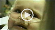 Video Collection: Pertussis
